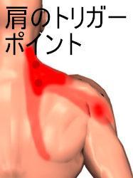 肩のトリガーポイントの図