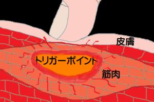トリガーポイントの図